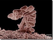 Celiac-disease-bacteria-overgrowth-gluten-free-diet-E_coli_10000x